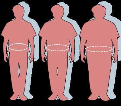 Gojaznost utiče na intelektualne sposobnosti djece